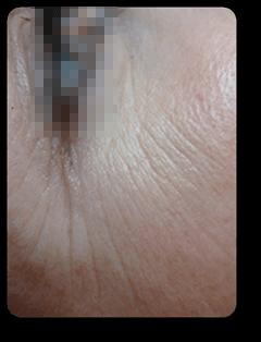 Augenfalten verbessern bei Alster Kosmetik Susann Klein