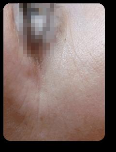 Straffe Haut durch Alster Kosmetik Susann Klein in der Hamburger Innenstadt