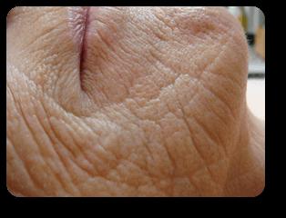 Mundfalten vor Straffungsbehandlung und Mikrodermabrasion bei Alster Kosmetik Susann Klein