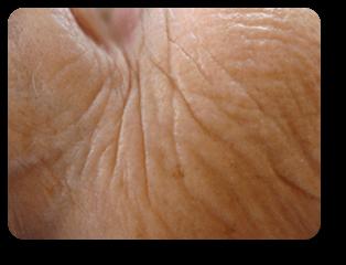 Augenfalten nach Straffungsbehandlung und Mikrodermabrasion bei Alster Kosmetik Susann Klein