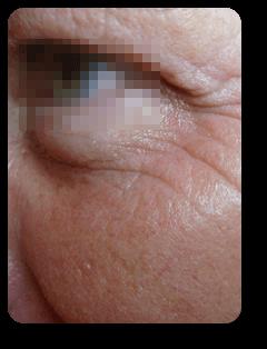 Augenfalten seitlich vor Straffungsbehandlung und Mikrodermabrasion bei Alster Kosmetik Susann Klein