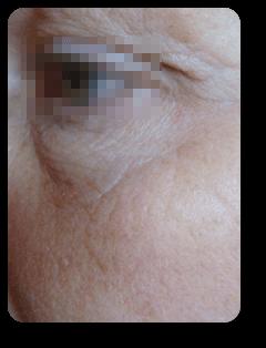 Augenfalten seitlich nach Straffungsbehandlung und Mikrodermabrasion bei Alster Kosmetik Susann Klein