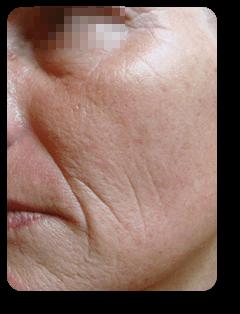 Wangenfalten vor Straffungsbehandlung und Mikrodermabrasion bei Alster Kosmetik Susann Klein