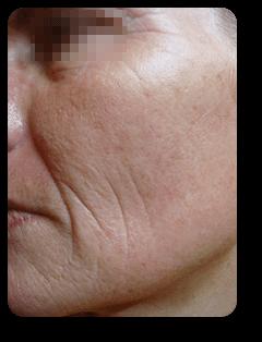 Wangenfalten nach Straffungsbehandlung und Mikrodermabrasion bei Alster Kosmetik Susann Klein