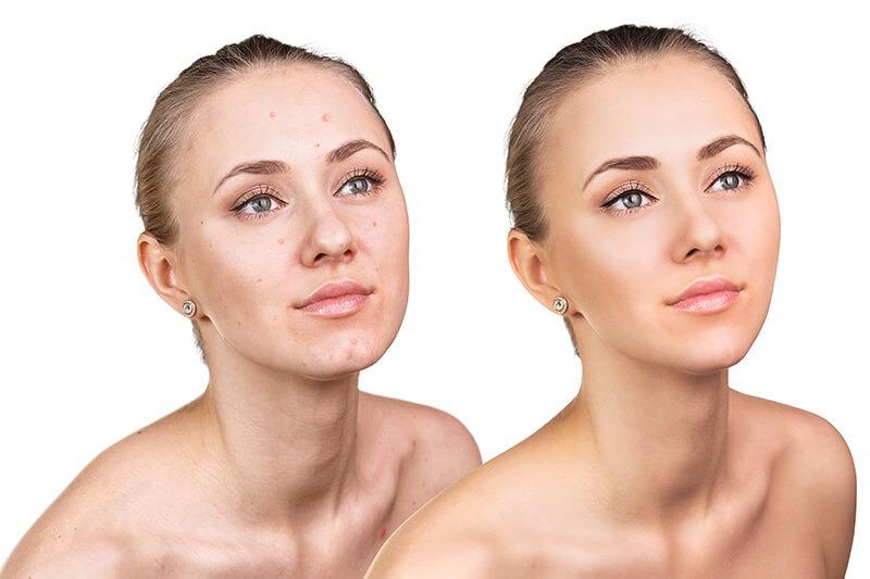 Kosmetik Studio Hamburg Innenstadt Sasel Microneedeling Akne unreine Haut große Poren fettige Haut Sonnengeschädigte Haut was tun gegen Narben? Falten glätten Hyaluronsäure entfernen von Komedonen Unreinheiten werden reduziert